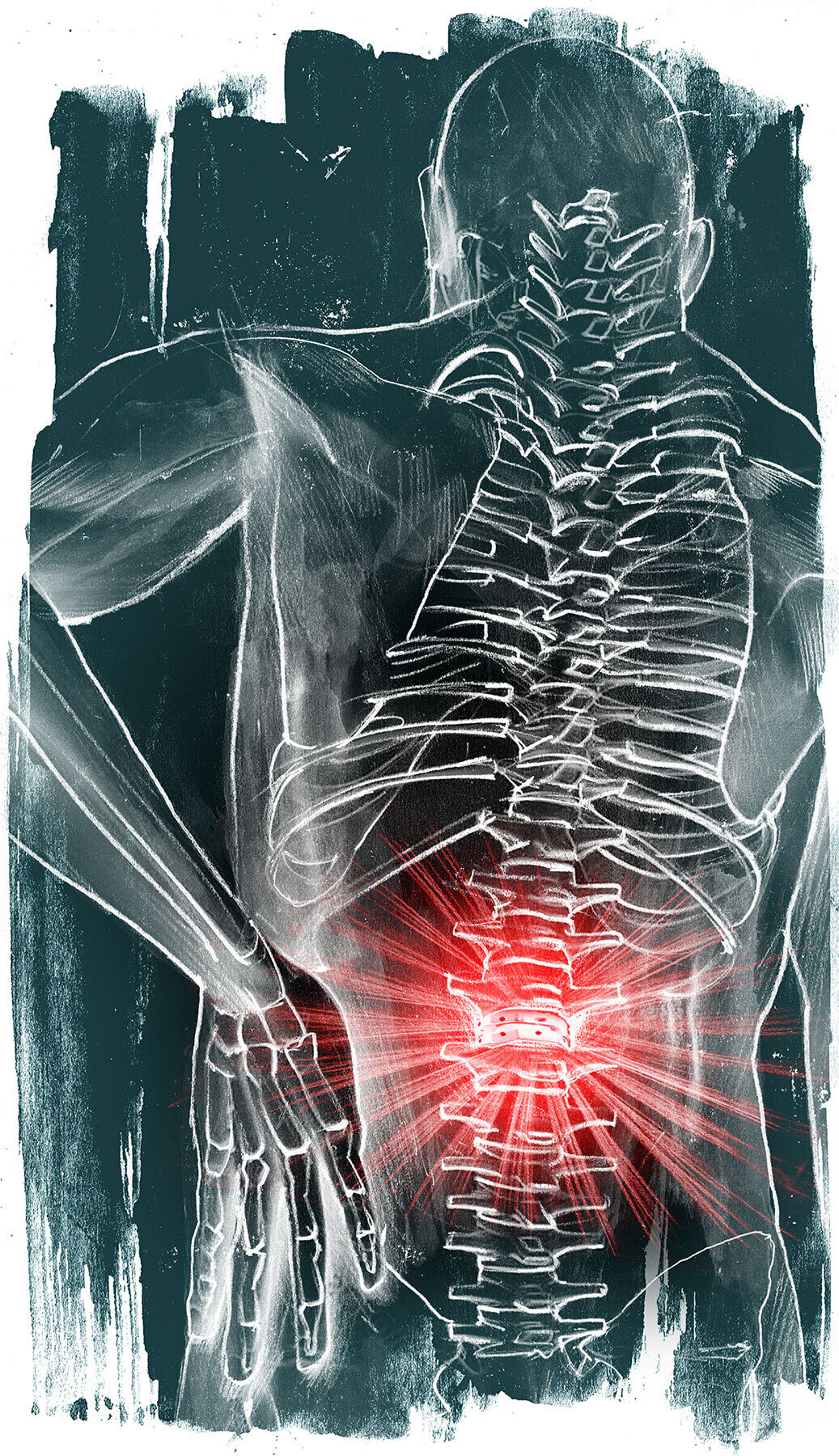 Implantate ruecken illustration - Kornel Illustration | Kornel Stadler portfolio