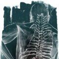 Client Arbeit Implantate1 2923 518 900 Kornel Illustration | Kornel Stadler